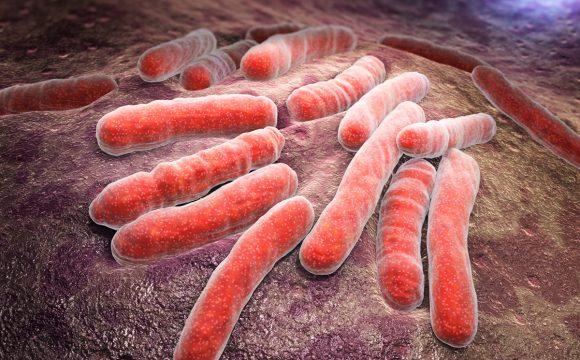 Epidemiologia i program zwalczania gruźlicy