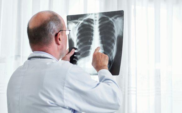 Kompleksowa diagnostyka raka płuca